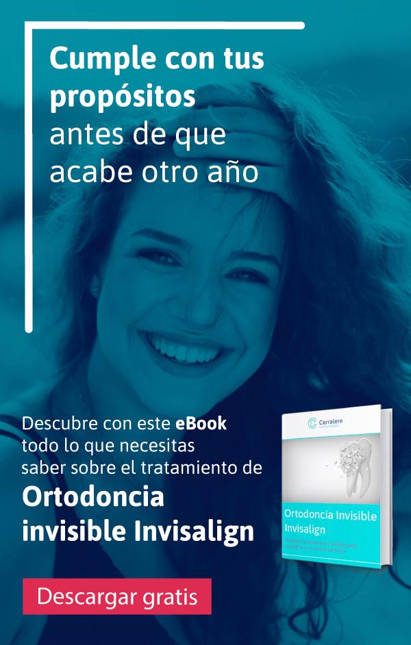 Ebook Invisalign