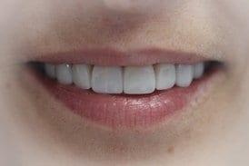 sonrisa-final-real