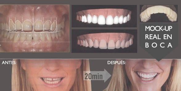 diseño-de-sonrisas