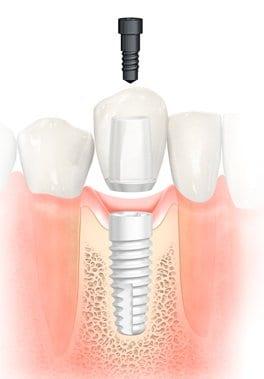 Implantes sin metal