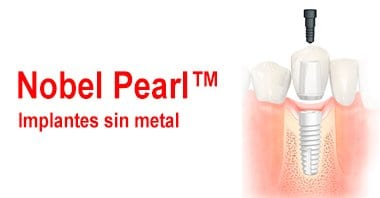 Implantes sin metal: Nobel Pearl