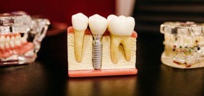 puentes dentales