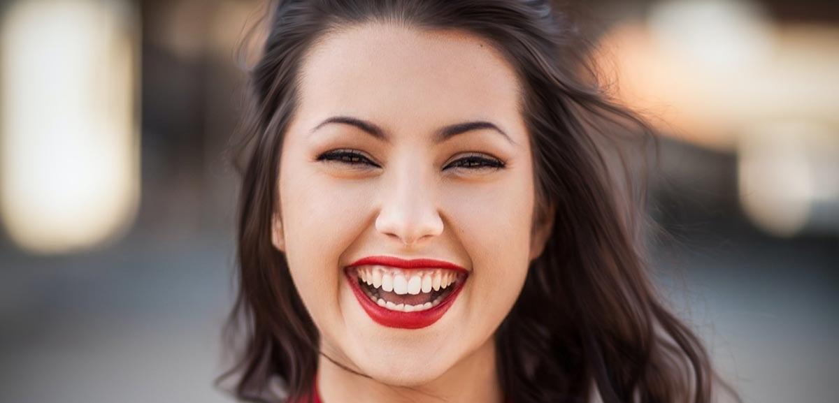 corregir sonrisa gingival