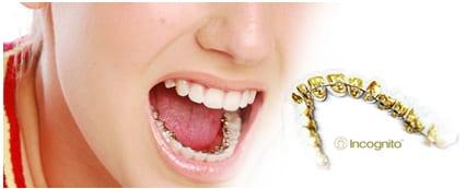 como-queda-ortodoncia-lingual-incognito