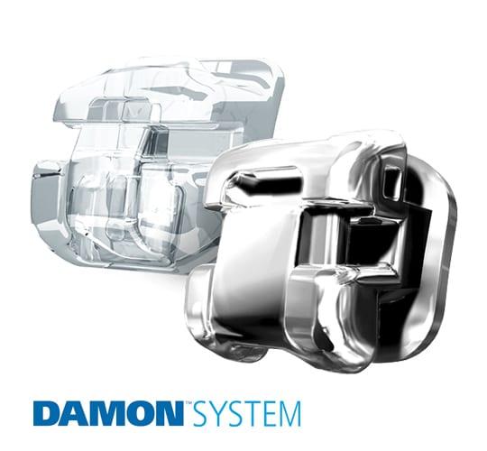 Ortodoncia rápida Damon System