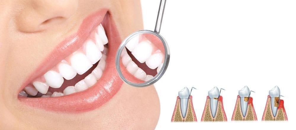 periodoncia-injertos