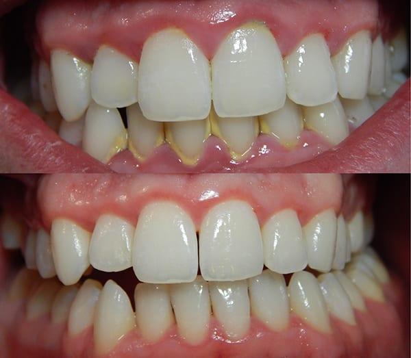 prevenir-gingivitis