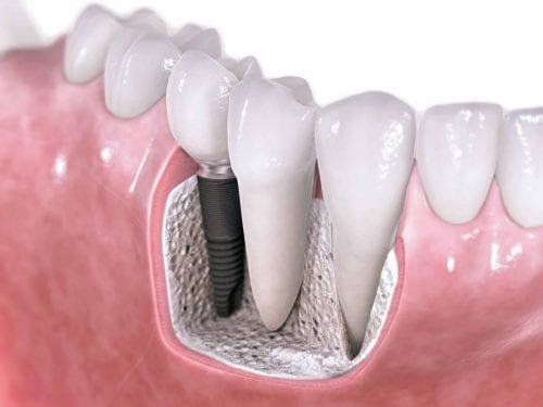 implantes-sin-puntos