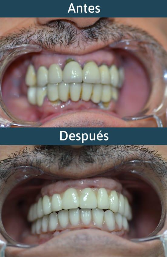 antes-después-implantes