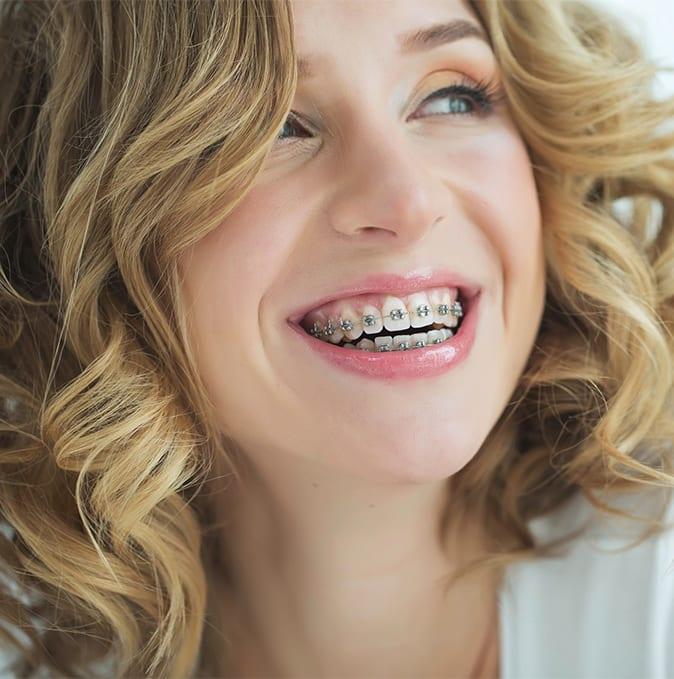 ortodoncia-tradicional